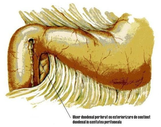 Ulcer duodenal perforat tratament cu miere