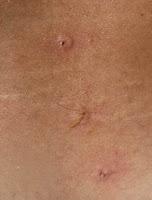 Tratamentul cu venin de albine - mieresabadus.ro